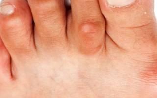 Что поможет при артрите ступни