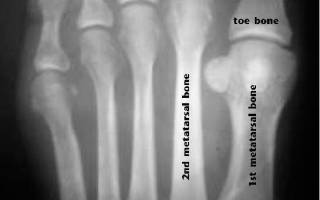Артроз плюсневых костей стопы лечение