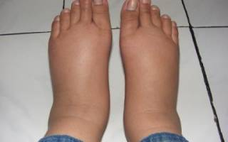 Снять отечность со ступни при артрите