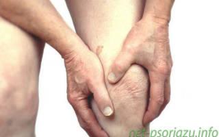 Что такое псориатический артрит и как его лечить