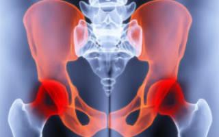 Боль в суставе тазобедренном причины и лечение
