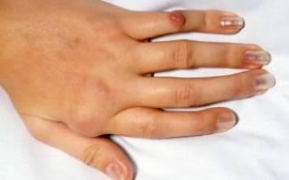 Остеоартроз пальцев рук симптомы и лечение