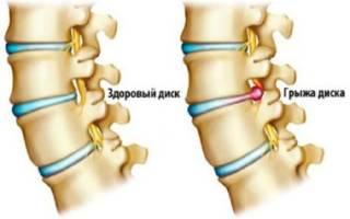 Как лечить межпозвоночную грыжу шейного отдела позвоночника