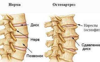 Остеоартроз шейного отдела позвоночника лечение