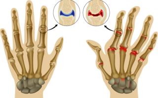 Препараты для лечения полиартрита пальцев рук