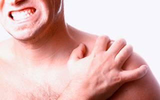 Лечение бурсита плечевого сустава препараты