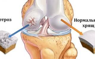 Лечится ли артроз коленного сустава