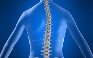 Сколиоз упражнения для укрепления мышц