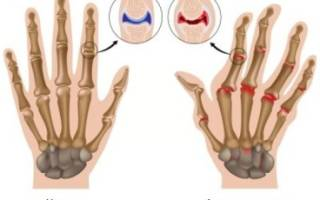 Артроз на пальцах рук фото