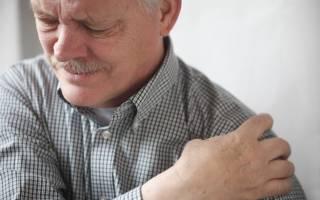 Плечелопаточный артроз симптомы и лечение
