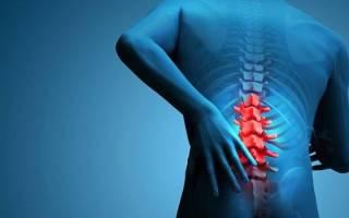 Грыжа спины симптомы у мужчин