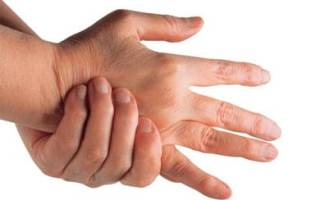 Лечение ревматоидного артрита в спб