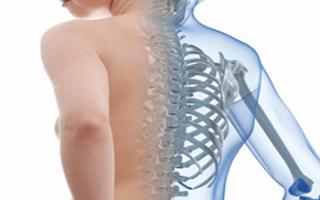 Сколиоз грудного отдела позвоночника код мкб