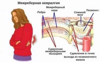 Таблетки от межреберной невралгии отзывы