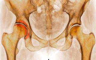 Лечение коксартроза в ростове на дону