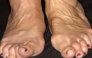 Полиартрит ног симптомы и лечение фото