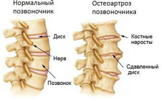Остеоартроз поясничного отдела позвоночника симптомы и лечение
