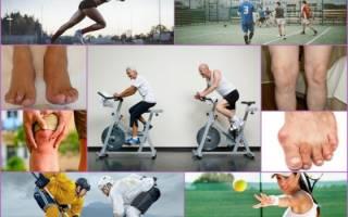 Можно заниматься футболом с артритом в коленях