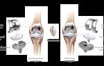 Замена коленного сустава фото до и после