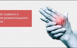 Что назначают при ревматоидном артрите