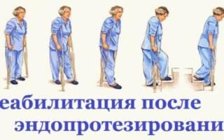 Лфк после замены тазобедренного сустава комплекс упражнений