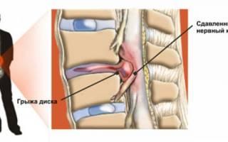 Позвоночная грыжа поясничного отдела лечение без операции