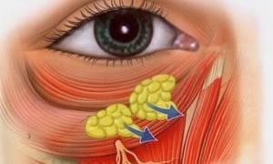 Как избавиться от грыж под глазами