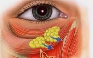 Как убрать грыжи под глазами без операции