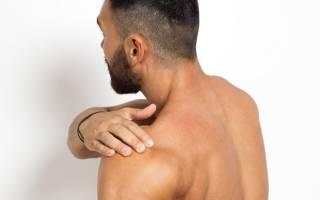 Лечение вывиха плечевого сустава после вправления