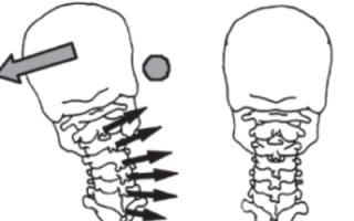 Сколиоз шейного отдела позвоночника симптомы и лечение