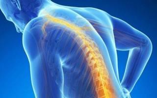 Сколиоз позвоночника симптомы и лечение