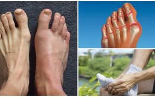 Артрит на пальце ноги лечение