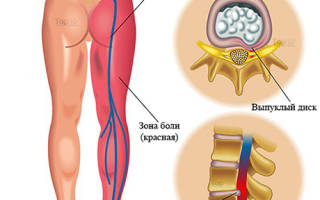 Невралгия седалищного нерва симптомы лечение