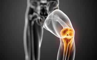 Выскакивает колено из сустава что делать