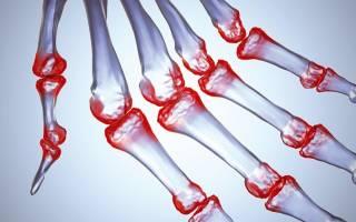 С какими заболеваниями связан артрит