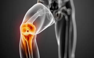 Артроз коленного сустава лечение симптомы