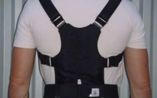 Корсет при кифосколиозе грудного отдела позвоночника