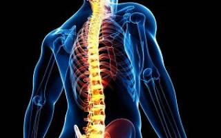 Стандарт оказания медицинской помощи при остеохондрозе позвоночника