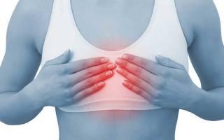 Симптомы при остеохондрозе шейного и грудного отдела позвоночника