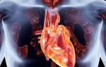 Межреберная невралгия в области сердца