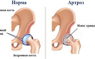 Лфк при артрозе тазобедренного сустава