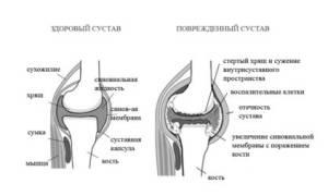 Поражение органов при ревматоидном артрите
