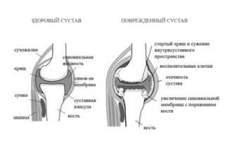 Причины ревматоидного артрита у взрослых
