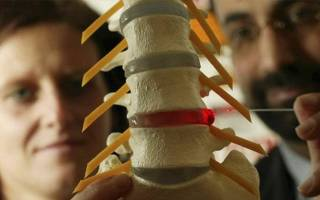 Можно ли избавиться от межпозвоночной грыжи без операции