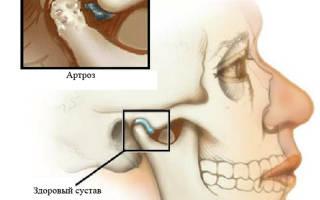 Артроз височно нижнечелюстного сустава симптомы