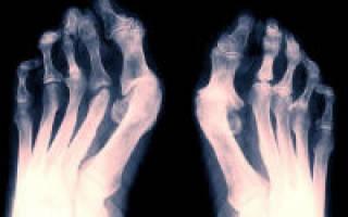 Как лечить артрит стопы ног