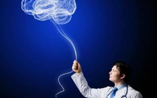 Что лечит невропатолог с какими симптомами обращаться