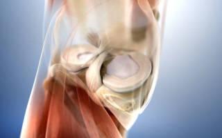 Реабилитация после операции на мениске коленного сустава
