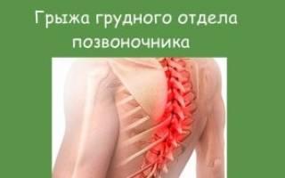 Признаки грыжи грудного отдела позвоночника симптомы