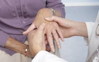 Санаторно курортное лечение при ревматоидном артрите